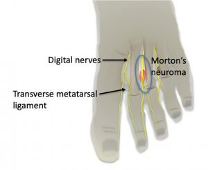 Histopatholgical changes with Morton's neuroma
