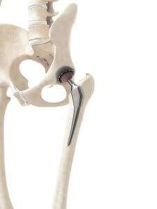 Left total hip replacement with ceramic femoral head