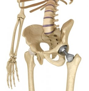 Left total hip replacement with metal femoral head