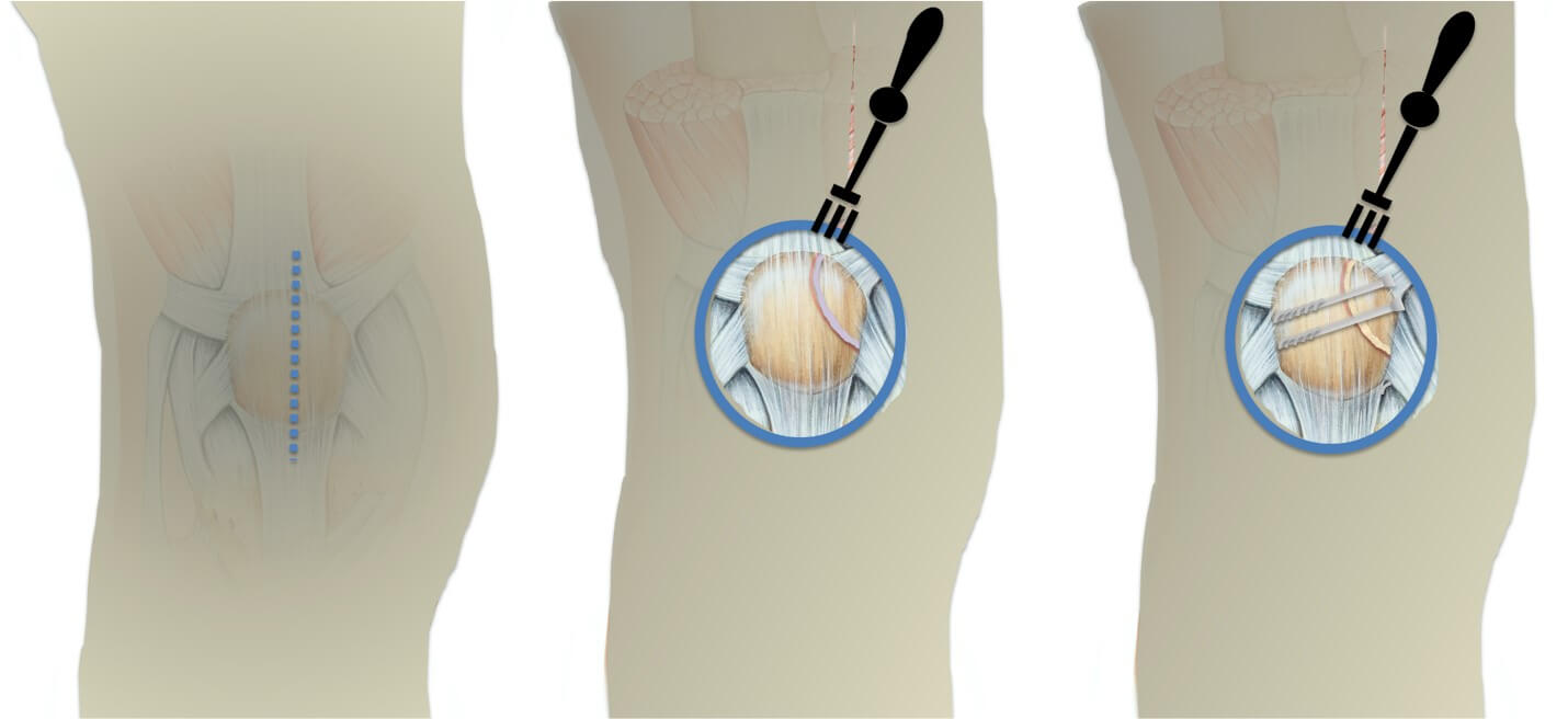 Open surgery technique for large superolateral bipartite patellar