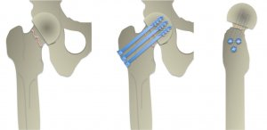 Surgery screw fixation for neck of femur fractures