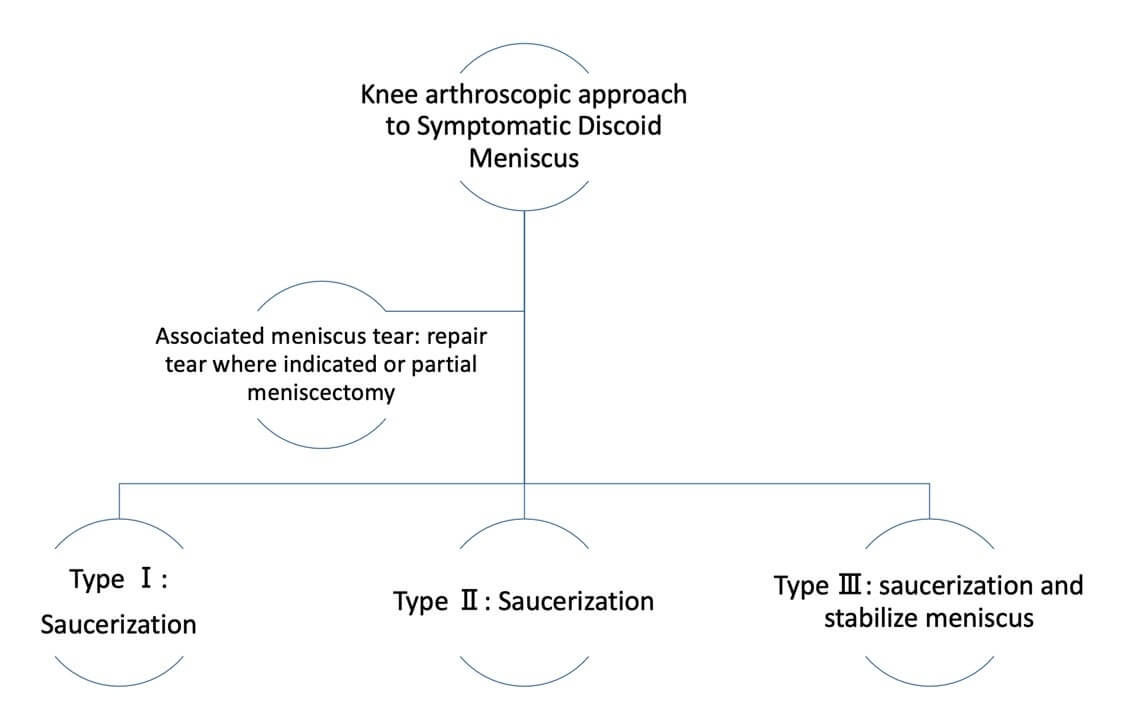 Surgical approach to symptomatic Discoid meniscus