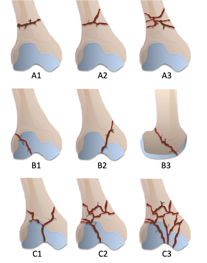 AO Classification for distal femur (32) fractures