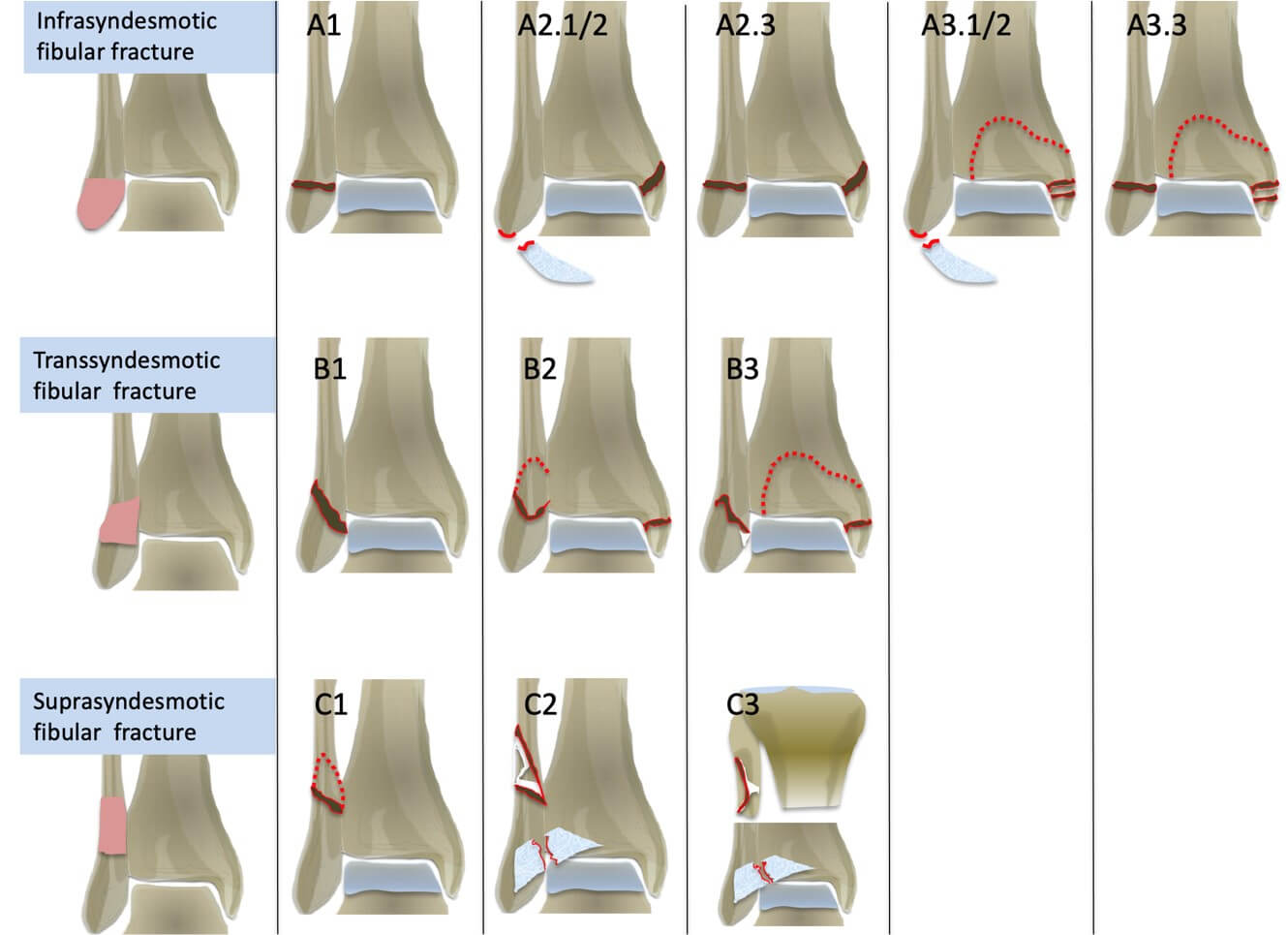 AO Classification of ankle fractures