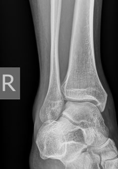 Ankle X-ray Mortise view