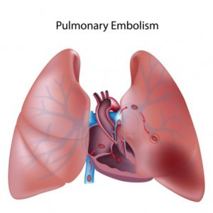 Fat embolism can cause respiratory failure and death