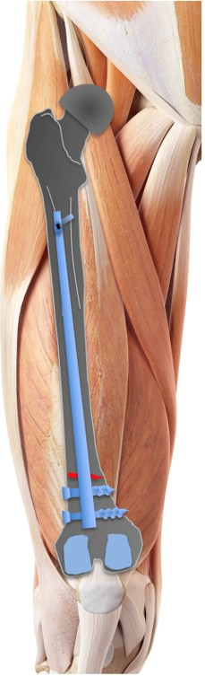 Surgery fixation for extra-articular distal
