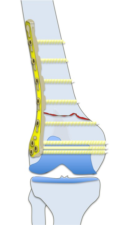 Surgery fixation for extra-articular distal femur fracture