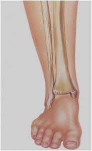 X-ray ankle: Anterior-posterior view