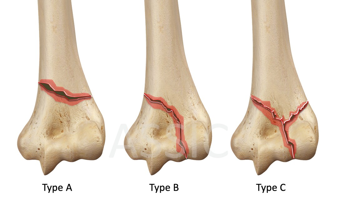 AO classification for distal humerus fractures