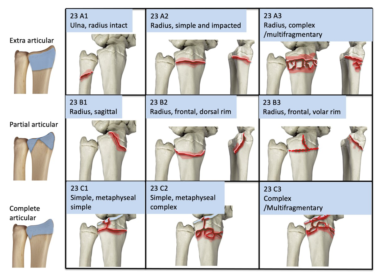 AO classification for distal radius fracture