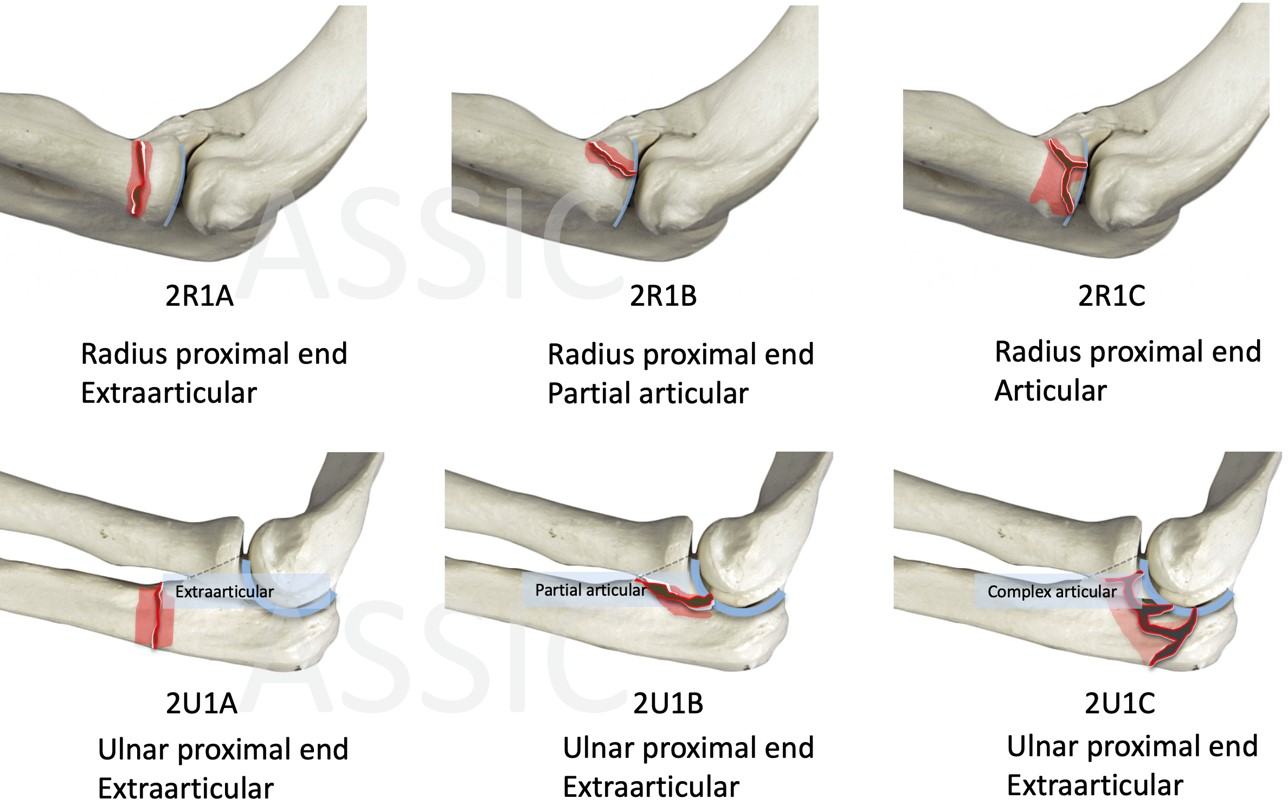 AO classification of proximal Radius and Ulnar fractures