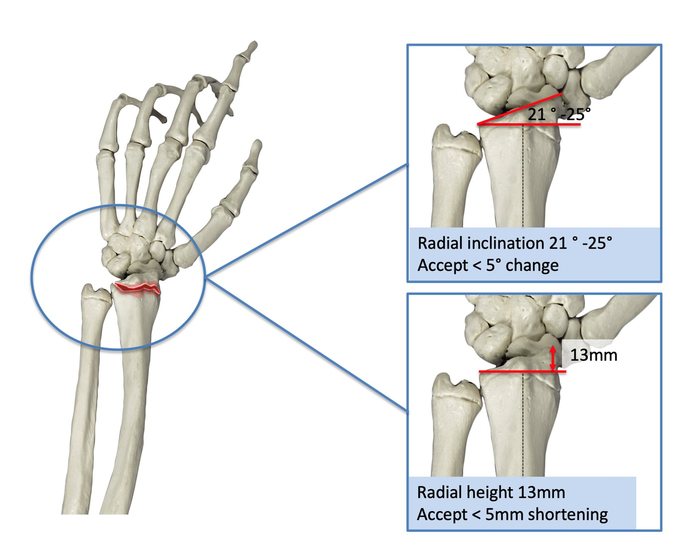 Acceptable malunion for distal radius fracture