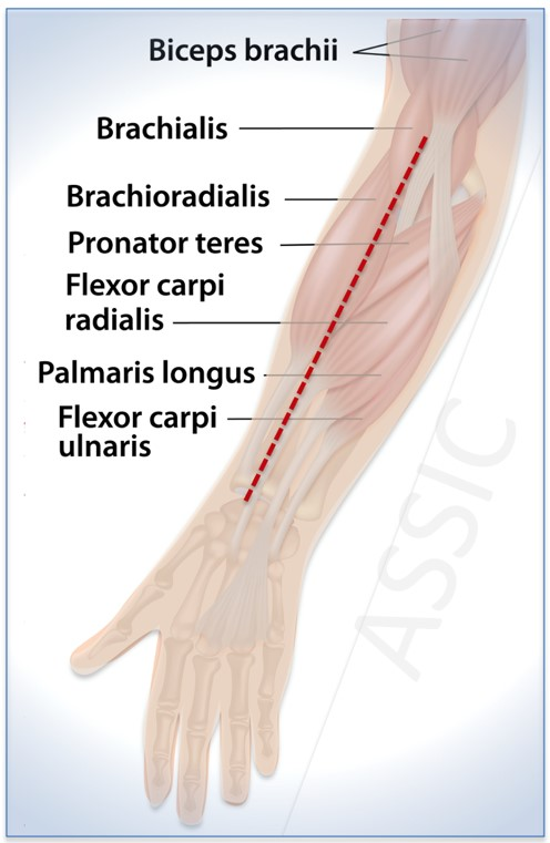 Anterior (Henry approach) to forearm