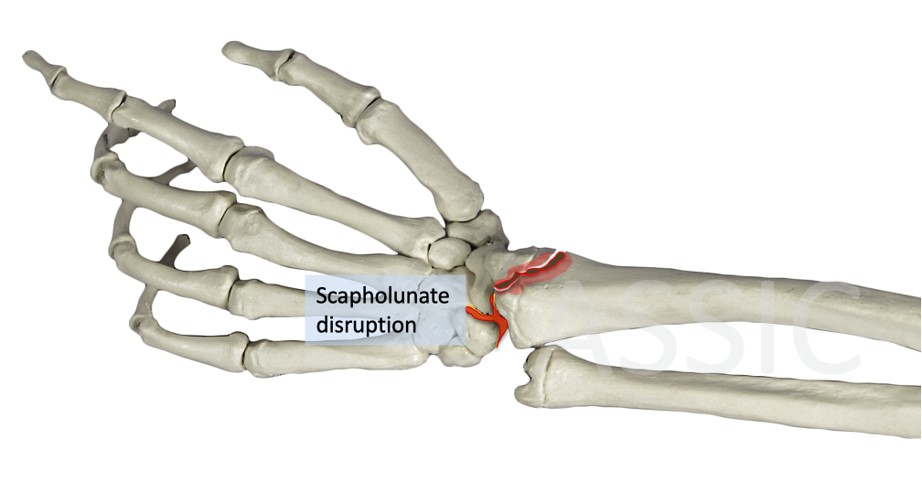 Chauffers fracture
