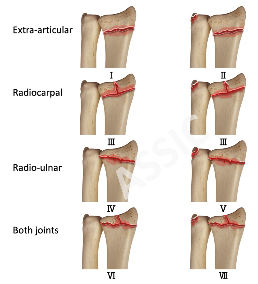 Frykman classification for distal radius fracture