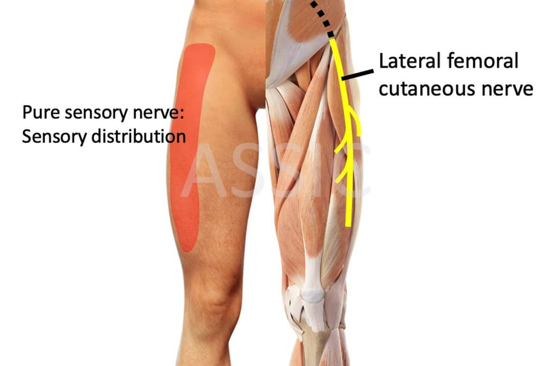 Lateral femoral cutaneous nerve of the thigh