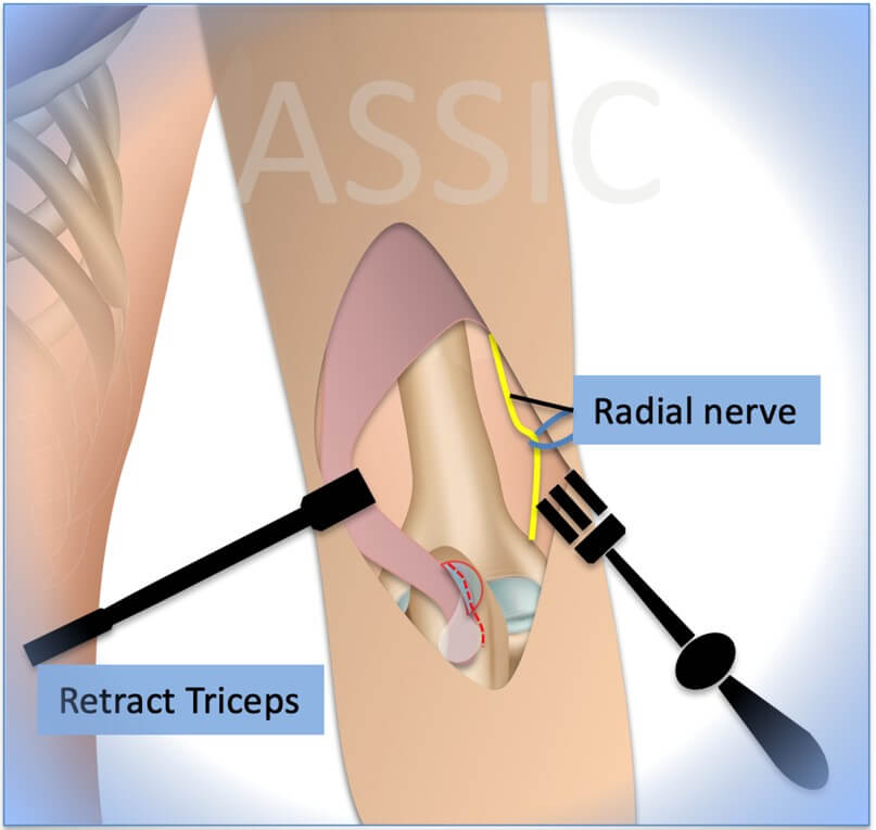 Lateral window: Lateral fascia release
