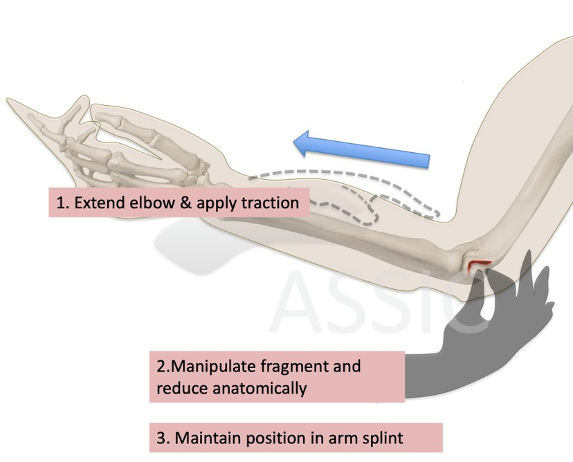 Manipulation and reduction of lateral epicondyle fracture