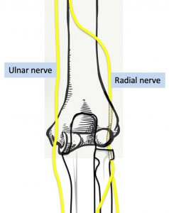 Posterior view of right elbow