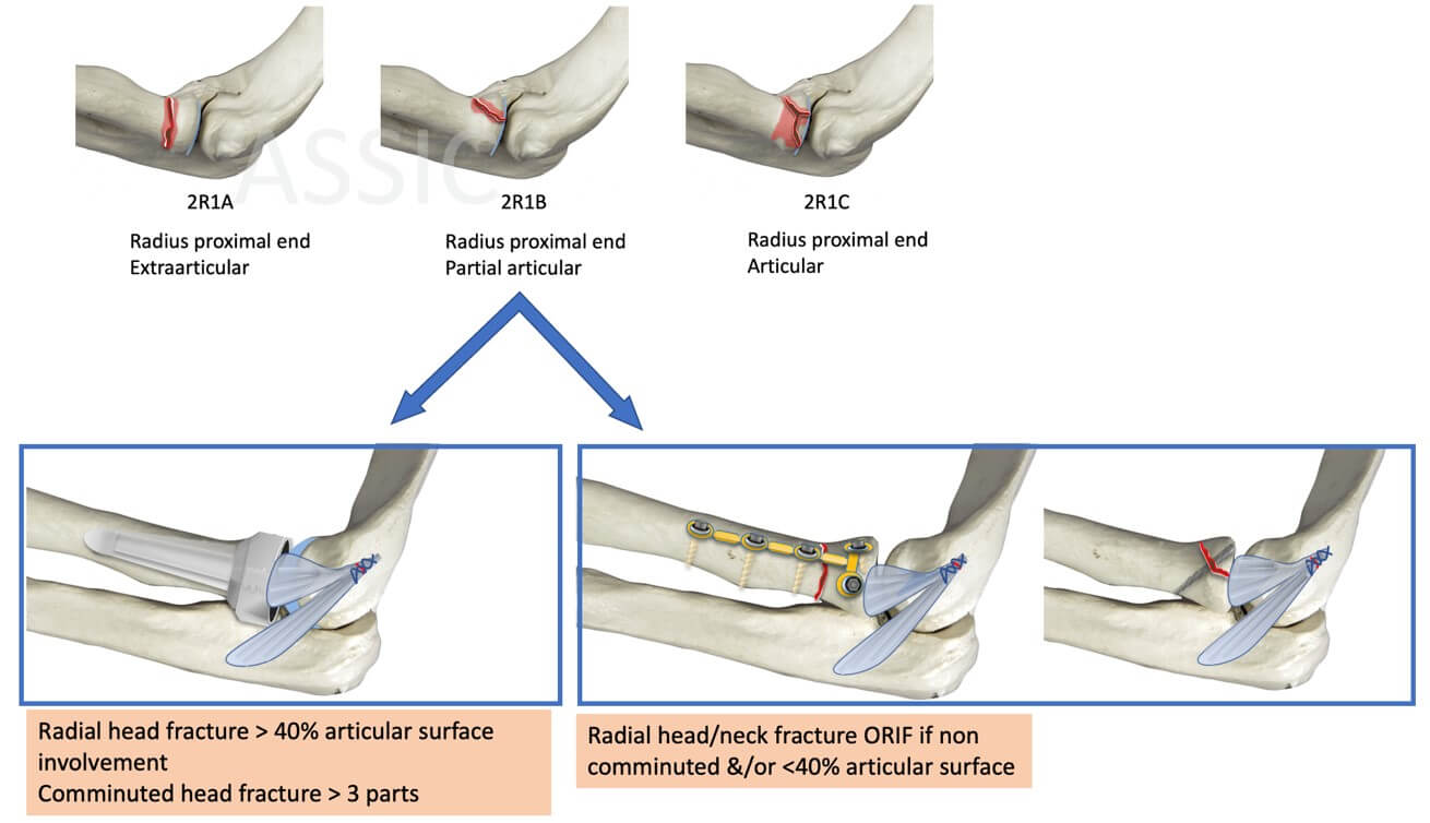 Radial head/neck fracture surgery considerations with Terrible Triad injury