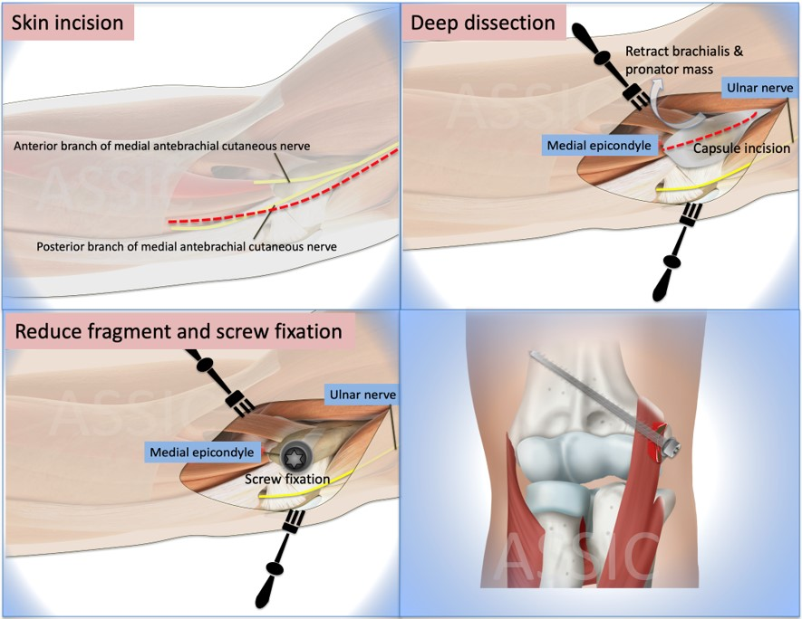 Surgery fixation of medial epicondyle