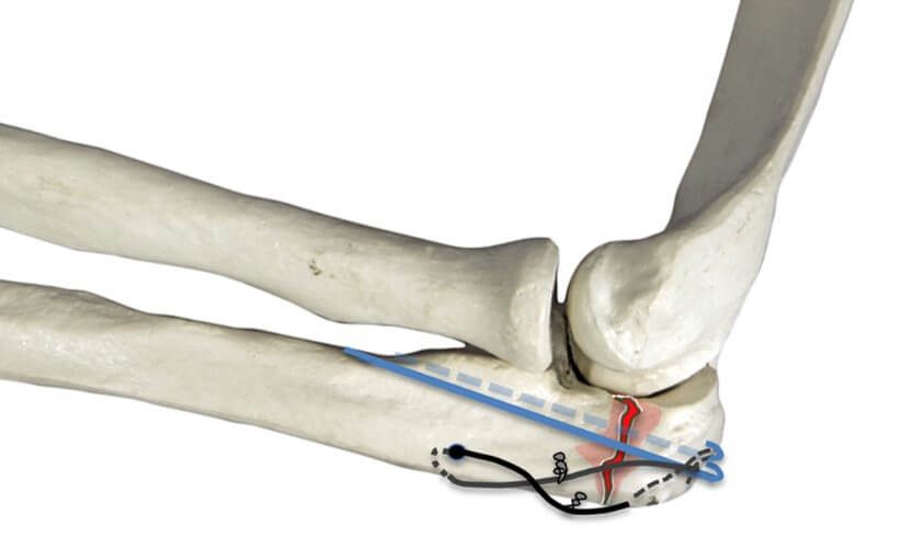 Tension band wiring for transverse fracture with no comminution.