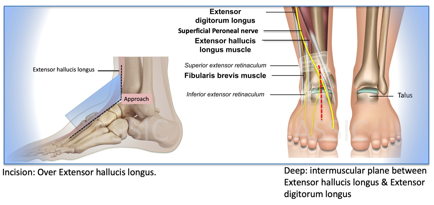 Anterior approach to ankle