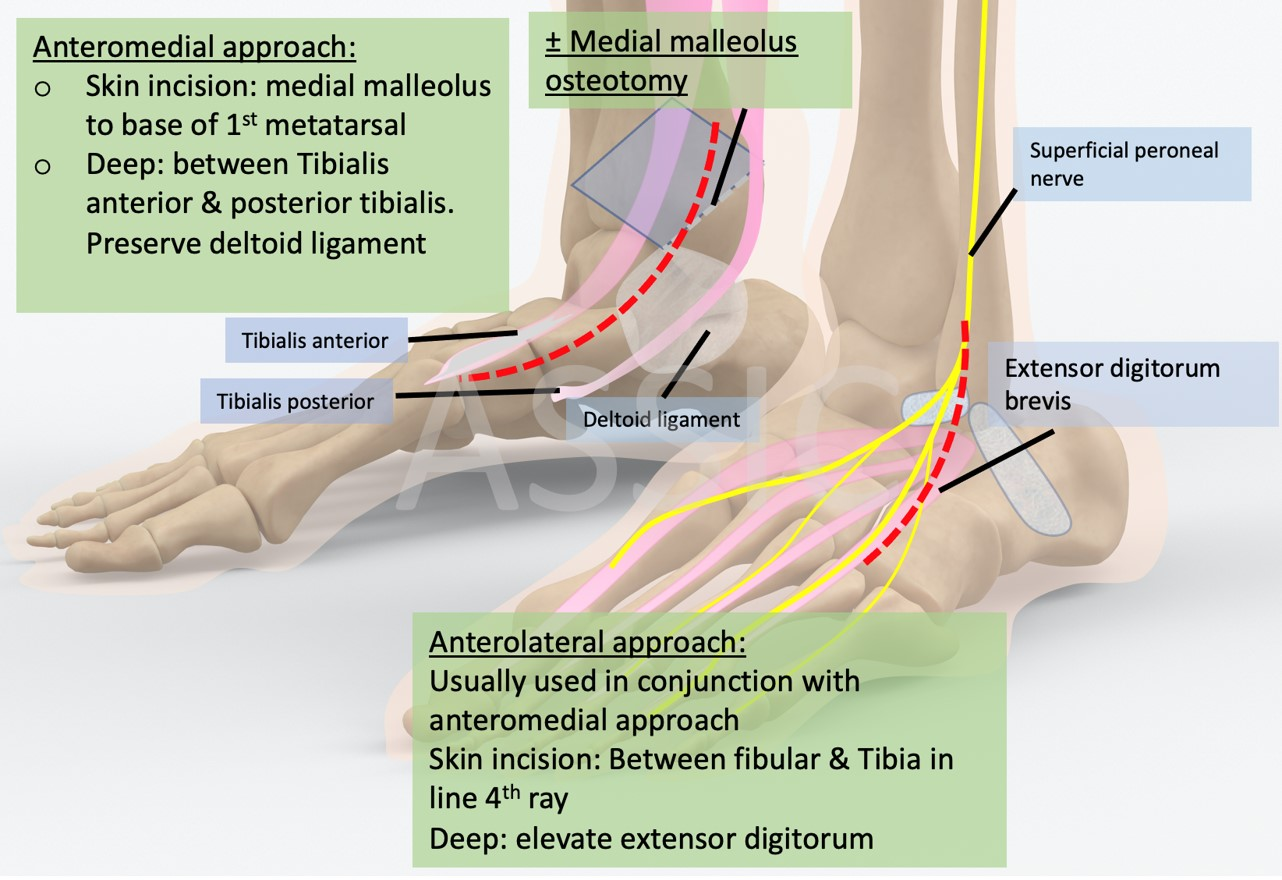 Anteromedial and Anterolateral approach to the talus