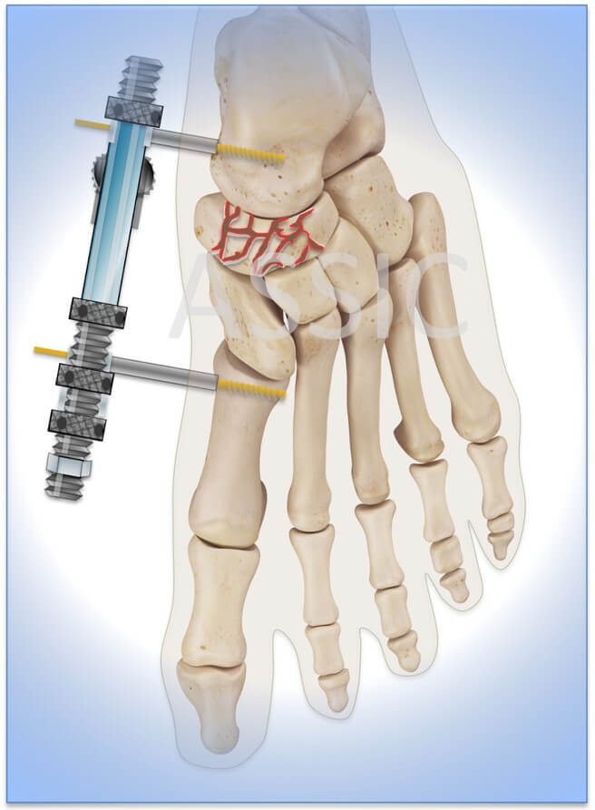 External fixator for distraction while navicular fracture ORIF