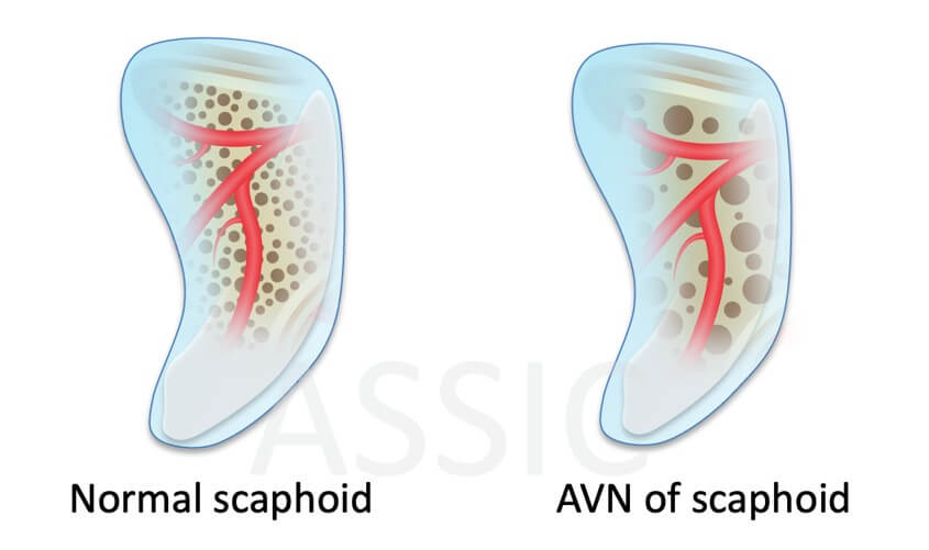Normal and AVN Scaphoid