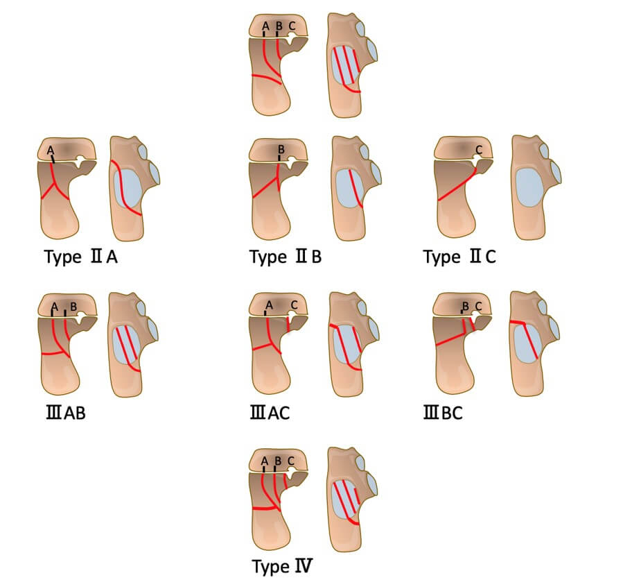 Saunders intra-articular calcaneus CT (coronal view) fracture classification