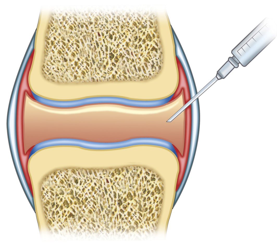 Topical ankle joint injection