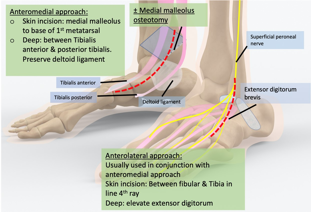 Approaches to distal Tibia and ankle joint