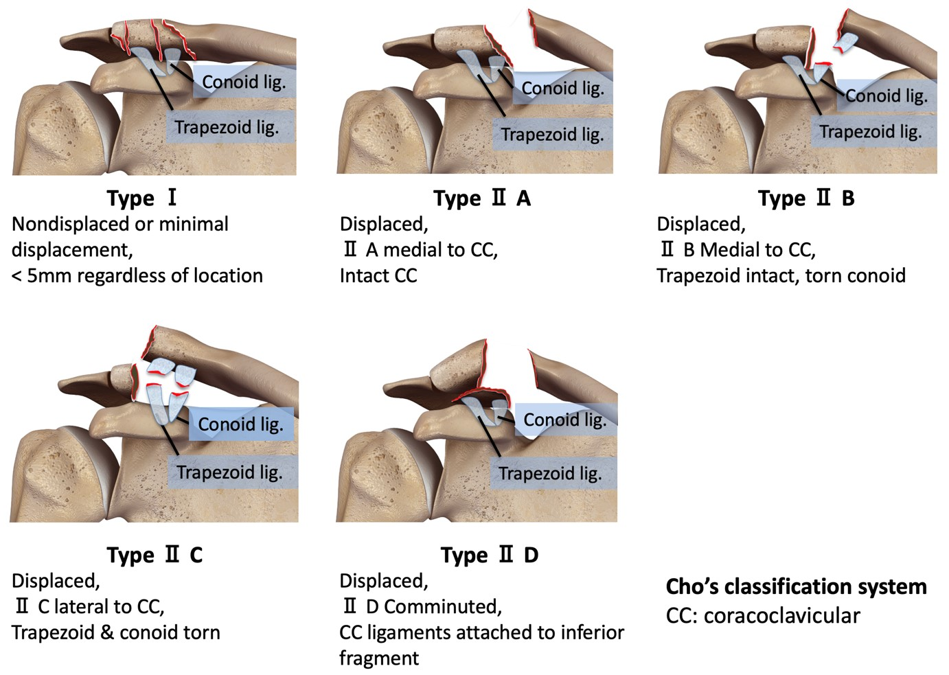 Cho's classification for distal 1/3 clavicle fractures