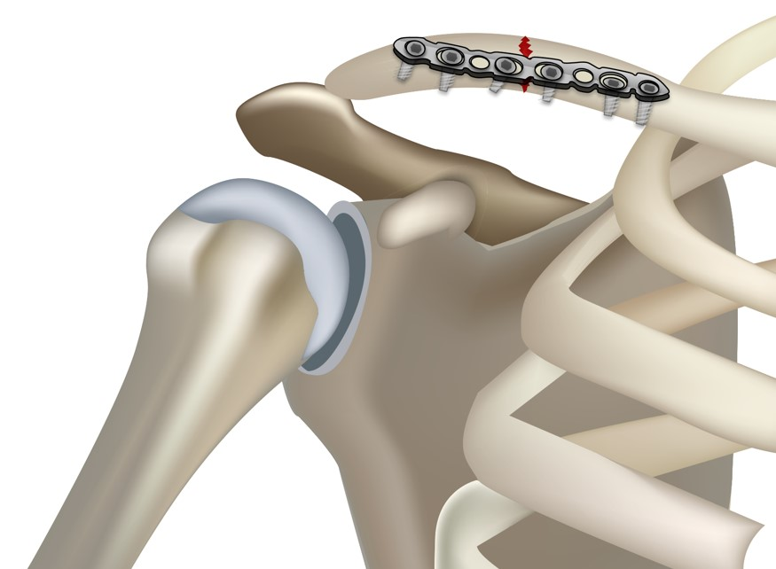 Clavicle plate and screw fixation