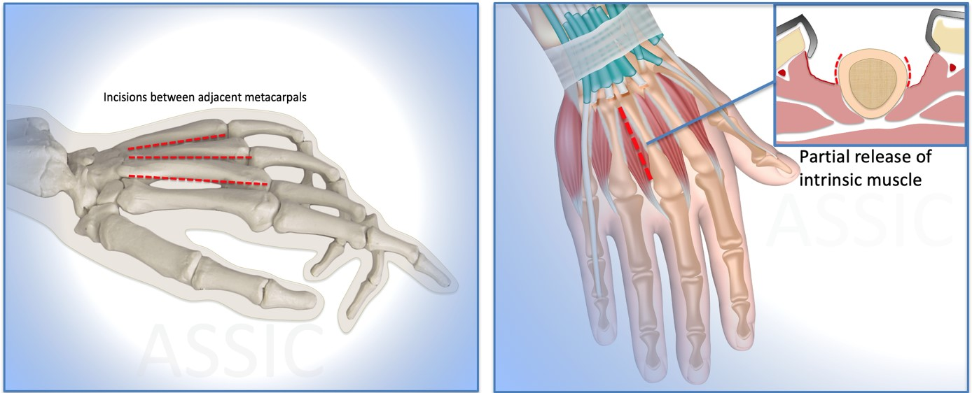 Dorsal approach to metacarpals