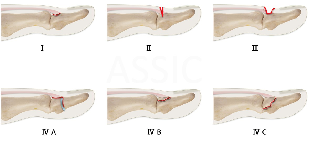Doyle's classification of Mallet finger
