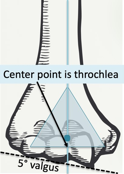 Hinge joint with axis of rotation around throchlear axis