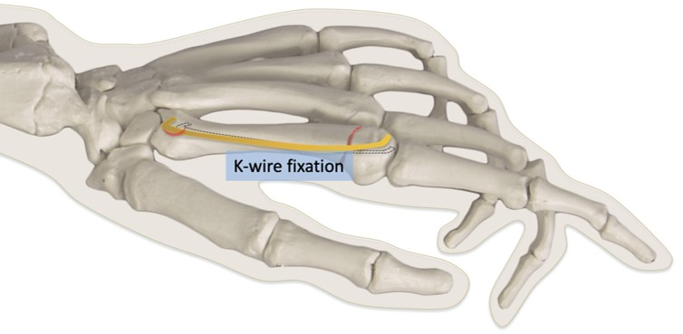 K-wire fixation for metacarpal neck fracture
