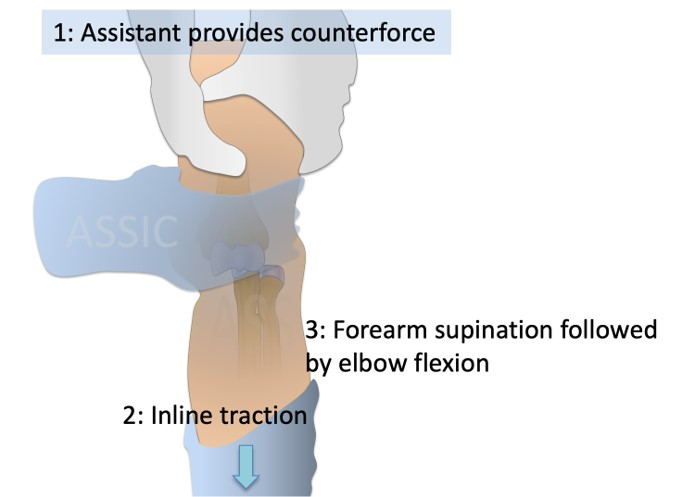 Management of Elbow dislocation
