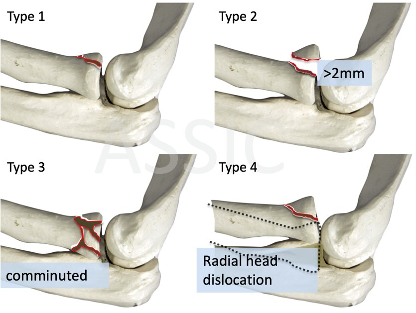 Mason-Johnston Classification of radial head fractures