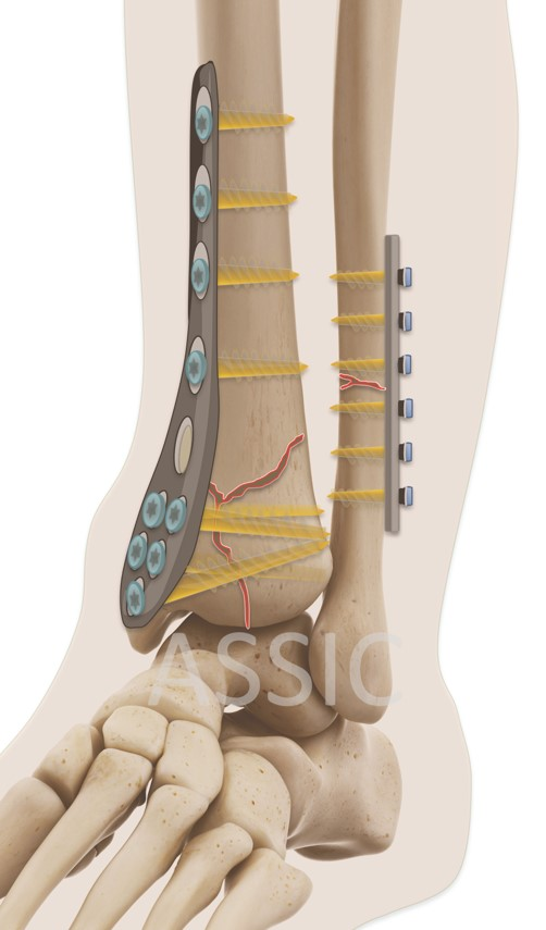 Pilon ankle fracture ORIF plate and screw fixation