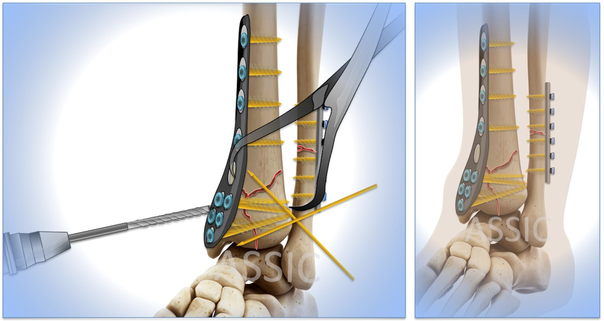 Surgery: Pilon ankle fracture ORIF plate and screw fixation