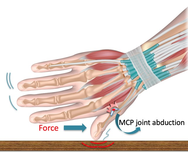 Thumb MCP joint extended with hyperabduction