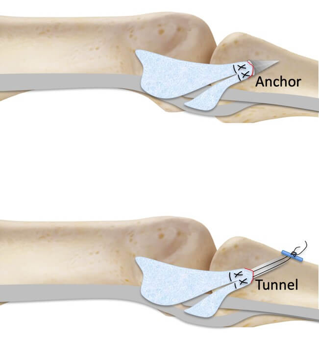 Repair collateral ligament