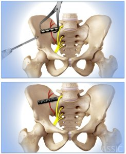 Sacroiliac joint plate and screw fixation
