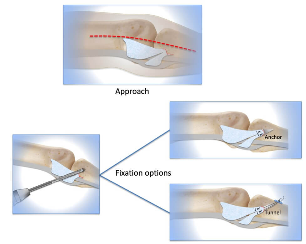 Surgery for finger collateral ligament repair
